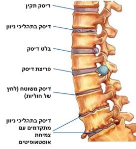 תרשים של בעיות נפוצות בחוליות עמוד השדרה