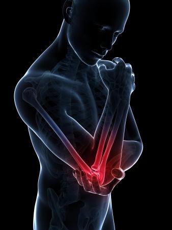 טניס אלבו - דלקת במרפק, הרבה פעמים נגרמת כתוצאה מחיכוך הגידים בעצם