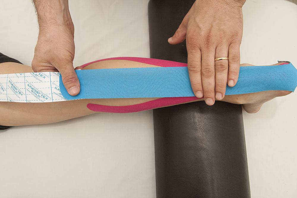 טיפול קינזיוטייפינג לפציעות ספורט