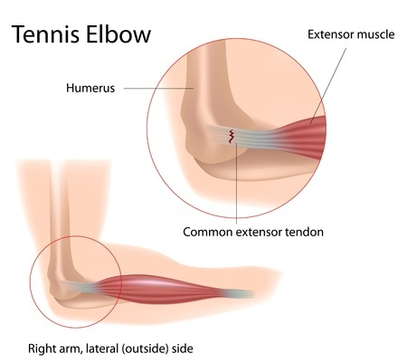 טניס אלבו - דלקת במרפק הנגרמת כתוצאה מחיכוך הגידים בעצם והיווצרות קרעים בגיד