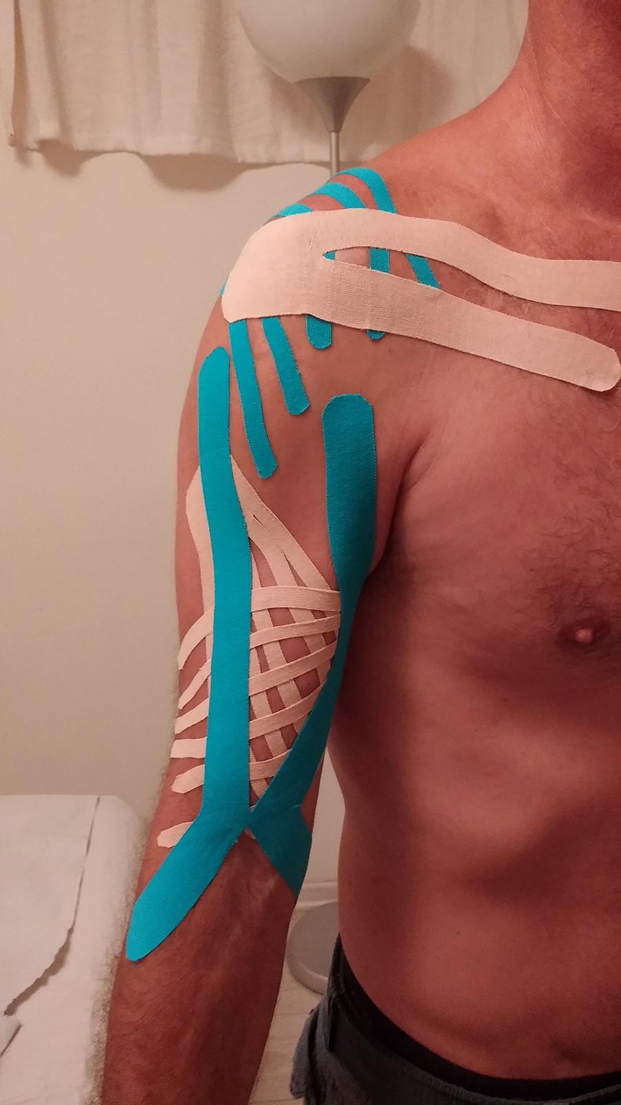 טיפול קינזיוטייפינג לקרע בשריר הדו-ראשי של היד (בייספס)