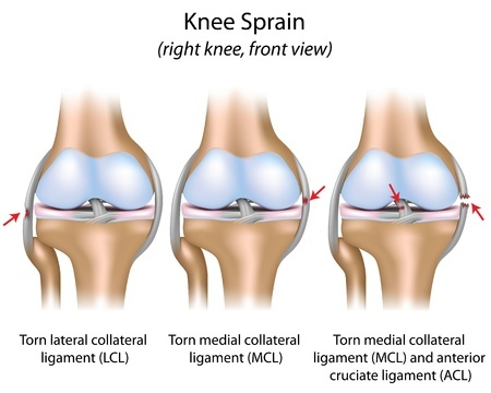 טיפול בפציעות ספורט - קרע ברצועות הברך