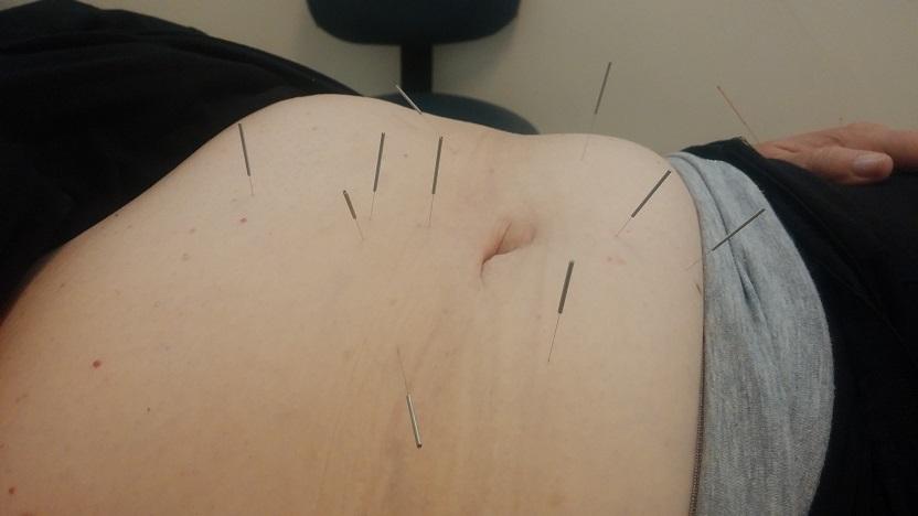 """דיקור בשיטת """"הצב"""" - דיקור בטן להקלה על כאבים וחיזוק"""