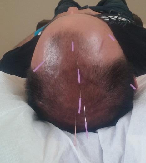 YNSA - הדיקור מתבצע באיזורים שונים של הראש והקרקפת