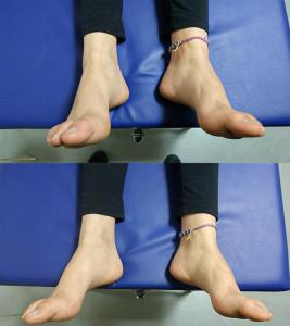 הבדל לפני ואחרי - תיקון יציבה של כפות רגליים, לאחר 5 דקות של סו-טאי