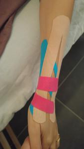 קינזיוטייפינג בשלב המשקם של דלקת במפרק כף היד