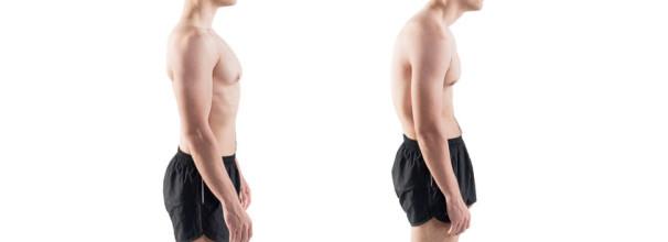 יציבה לקויה תגרום לכאבי גב